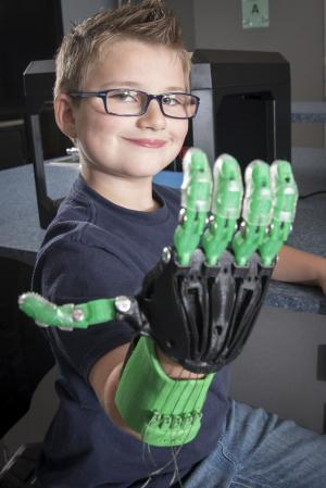 Noah Muns shows off the work-in-progress prosthetic hand.